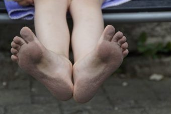 Jak odstranit zápach u nohou